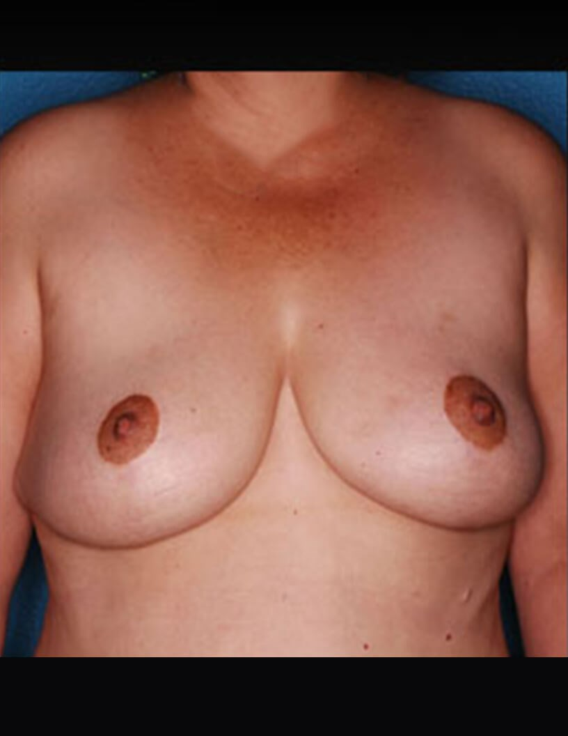 Breast Reduction Las Vegas