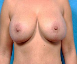 Breast augmentation VS breast lift_after
